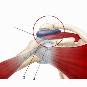 Механизм ущемления сухожилий мышц при отведении руки 1-надостная мышца 2-двуглавая мышца 3-подлопаточная мышца