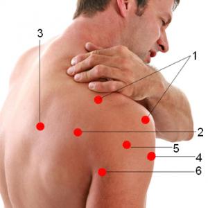 Болевые зоны в зависимости от вовлечения мышц в воспалительный процесс: 1-надостная мышца 2-подостная мышца 3-подлопаточная мышца 4-двуглавая мышца 5-дельтовидная мышца 6-трёхглавая мышца